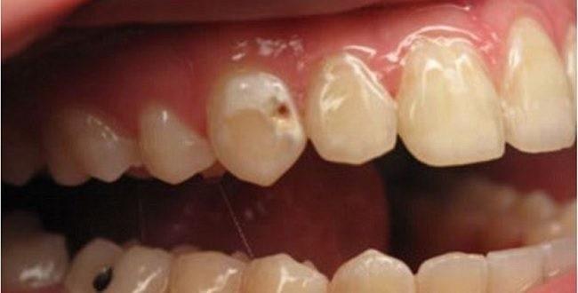 दाँतमा किरा लागेको छ ? दुखाई कम गर्न अपनाउनुहाेस् ९ उपाय