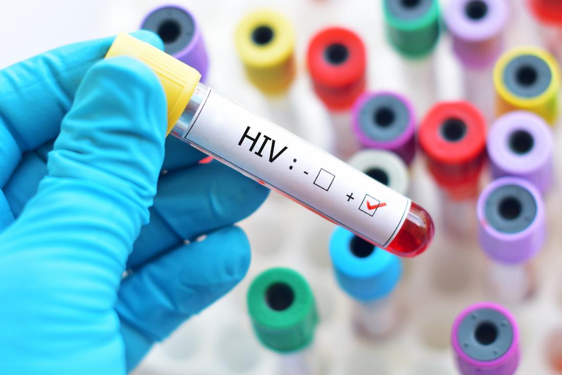 पाकिस्तानी डाक्टरको लापरवाहीले एकै गाउँका ४०० बढी व्यक्तिमा एचआइभी संक्रमण