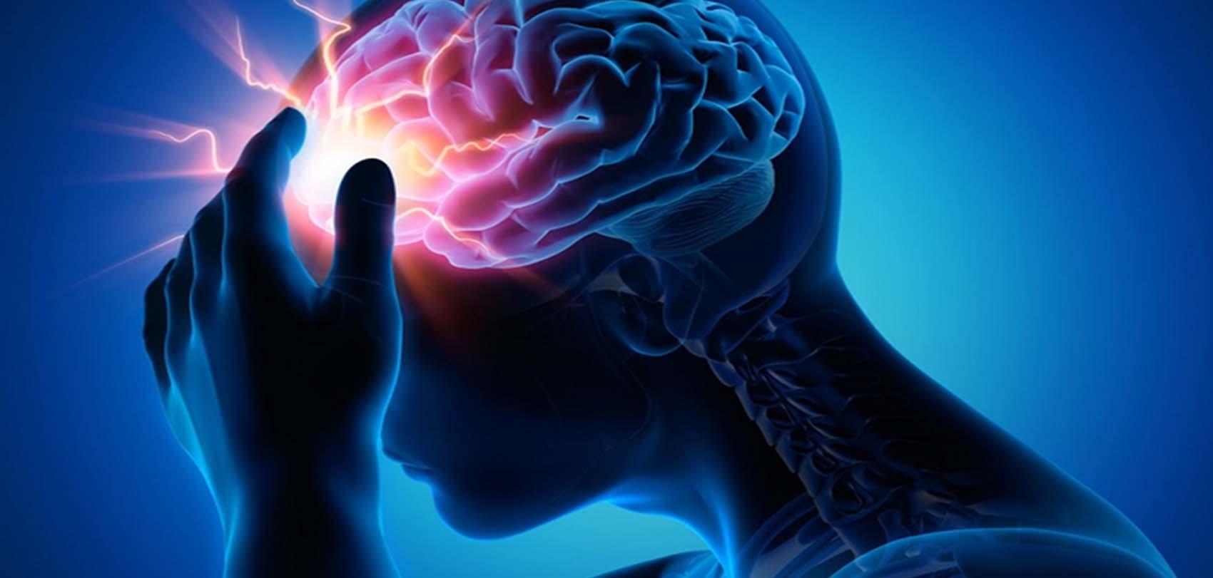 किन हुन्छ मस्तिष्कघात? जान्नुहोस् कारण र लक्षण