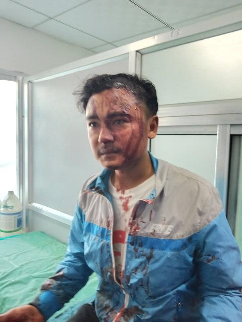 पत्रकार बस्नेतमाथि सांघातिक हमला