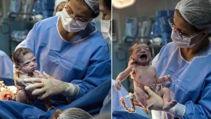 जन्मनेबित्तिकै रुनुको सट्टा नवजात शिशु रिसाएपछि .......